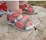при потертості ніг у дитини